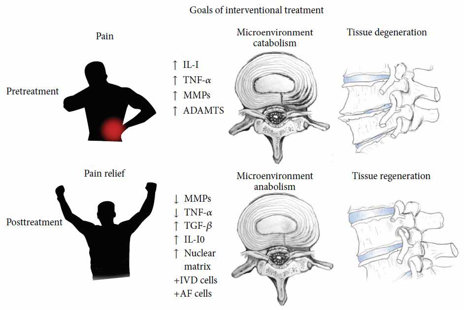 Stem Cell Treatment of Degenerated Discs and Back Pain