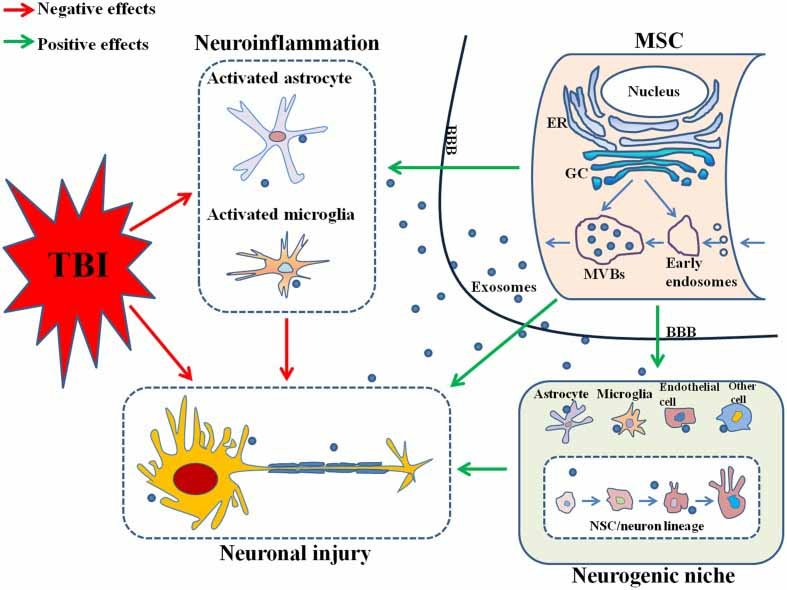 Neurodegeneration Traumatic Brain Injuri effects of exosomes