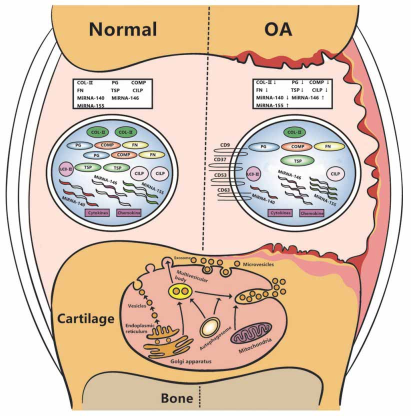 OA changes in Cartilage and Joint