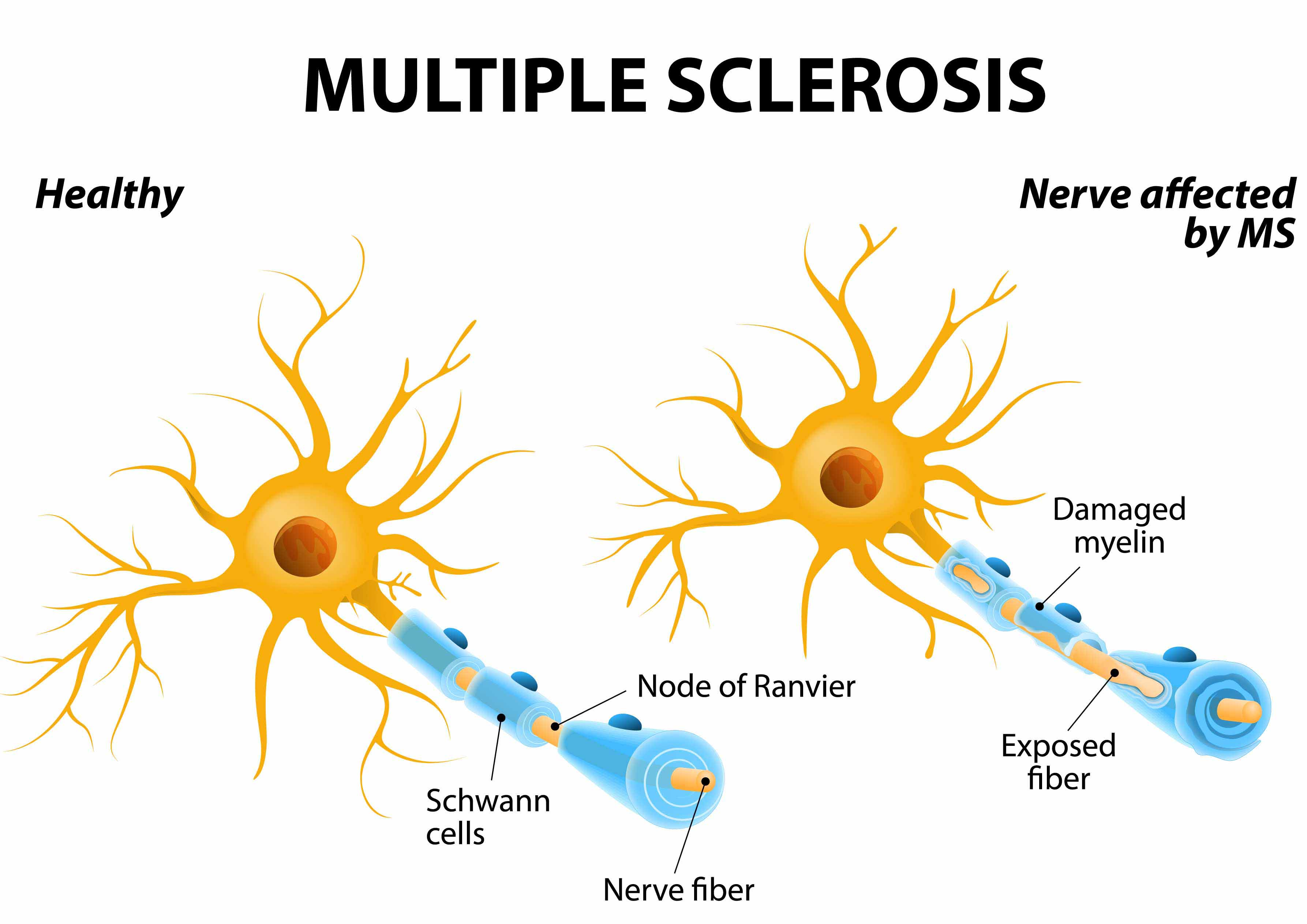 MS Neuron Differences