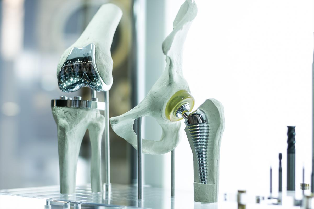 Avoid joint replacement implants in Osteoarthritis | ANOVA IRM