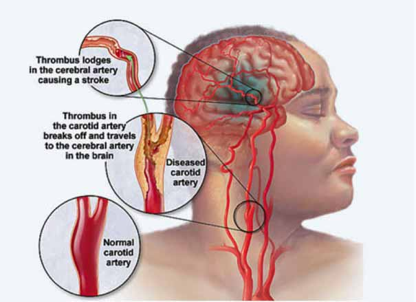effects of stroke